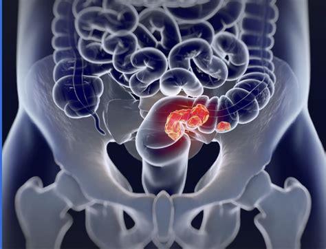 Síntomas del cáncer de colon: estos son los signos de ...