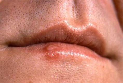 Síntomas del cáncer de labios: ¿cómo reconocerlos?