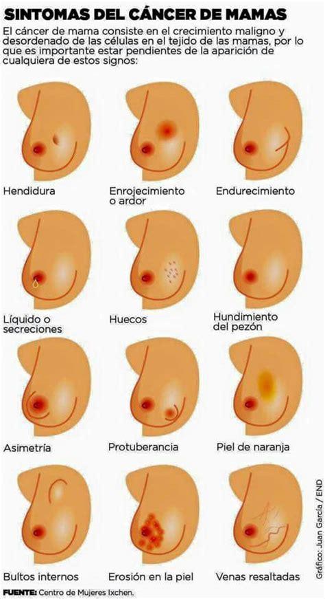 Síntomas del cáncer de Mamas. | Salud | Pinterest