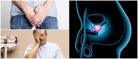 Síntomas Del Cáncer De Próstata: Diagnóstico, Etapas ...