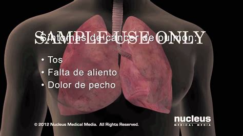 Síntomas del cáncer de pulmón   YouTube