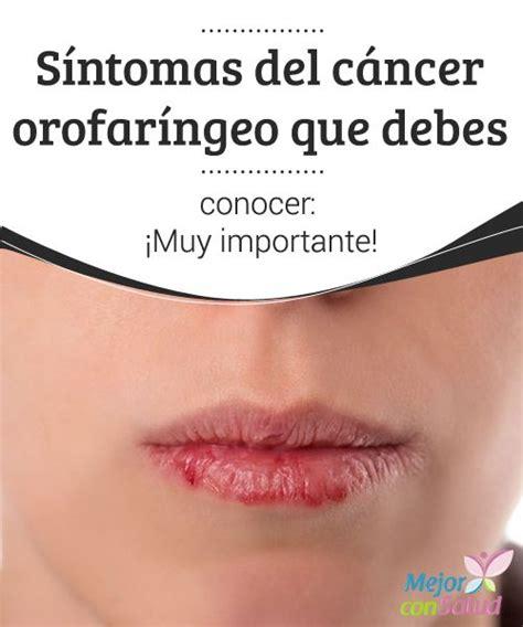 Síntomas del cáncer orofaríngeo que debes conocer: ¡Muy ...
