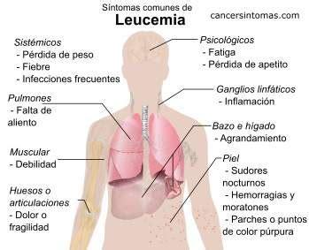 Sintomas do leucemia  câncer no sangue