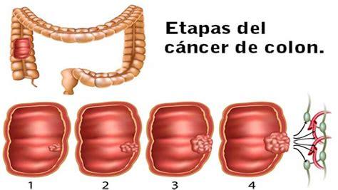 Síntomas que debes saber para detectar un cáncer de colon ...