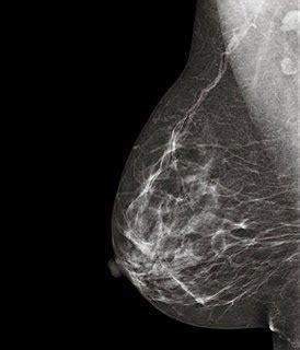 ¿Sirve de algo realizarse mamografías para saber si tienes ...