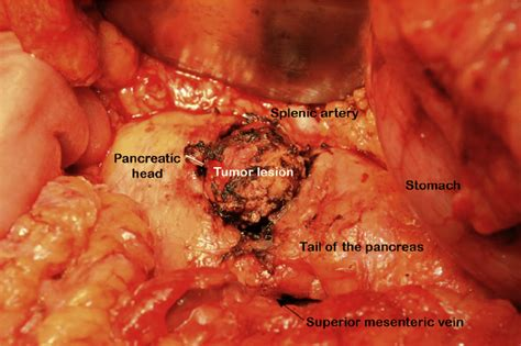 Situs prior to complete tumor enucleation of a pancreatic ...