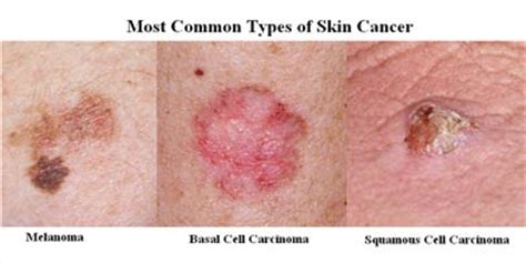 Skin Cancer 101: An Invited Article by Julia Tzu, MD ...