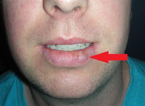 Skin Cancer Lower Lip   Lower Vermillionectomy   Dr ...