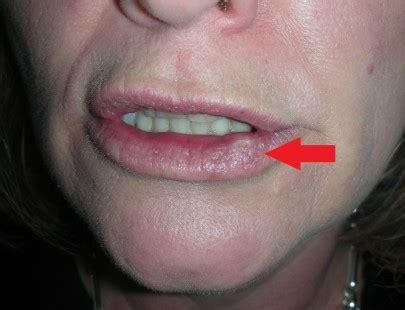 Skin Cancer Lower Lip – Lower Vermillionectomy