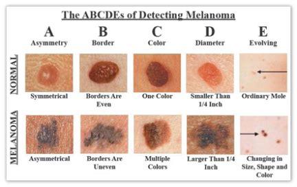 Skin cancer   Lupo Center for Aesthetic & General Dermatology