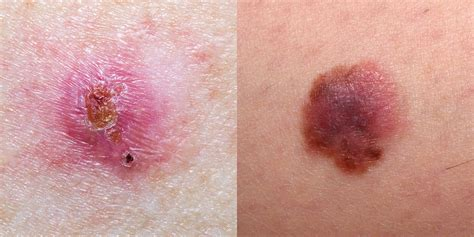 Skin Cancer Pictures   5 Different Types of Skin Cancer to ...