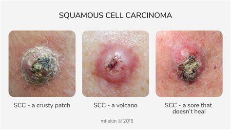 Skin Cancer Pictures   Most Common Skin Cancer Types with ...