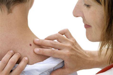 Skin Cancer Quick Facts