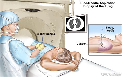Small Cell Lung Cancer Treatment  PDQ —Patient Version ...