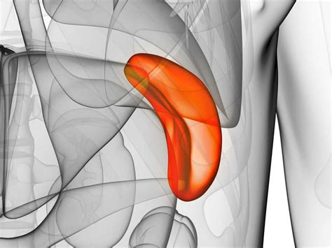 Spleen cancer: Causes, symptoms, and treatments