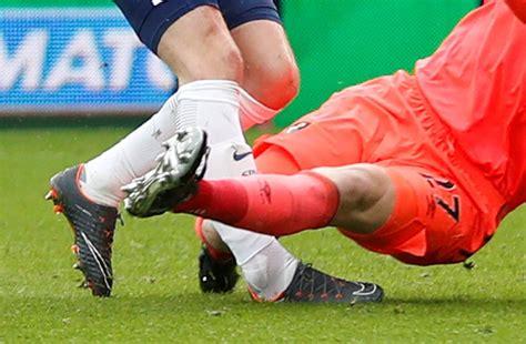 Spurs anxiously wait on Kane injury update | New Straits ...