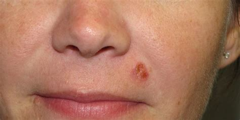 Squamous Cell Carcinoma Diagnosis | Skin Cancer And ...