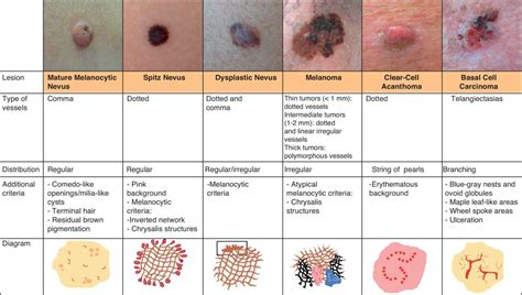 Squamous Cell Carcinoma   Dr. Farrah Cancer Center