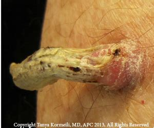Squamous Cell Carcinoma   Dr. Kormeili Dermatology