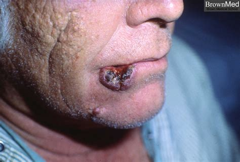 Squamous cell carcinoma   lip