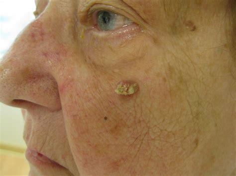 Squamous Cell Carcinoma of the Skin   Dermatology Advisor