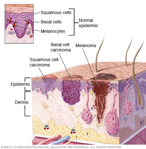 Squamous cell carcinoma of the skin Disease Reference ...