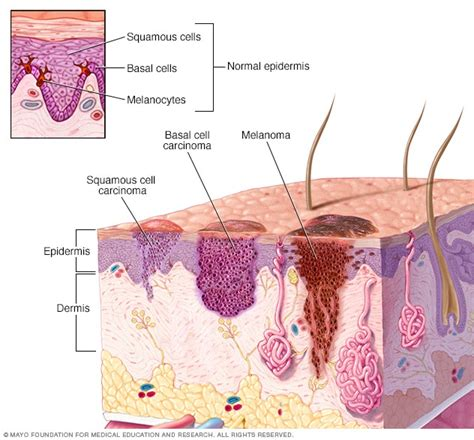 Squamous cell carcinoma of the skin   Symptoms and causes ...