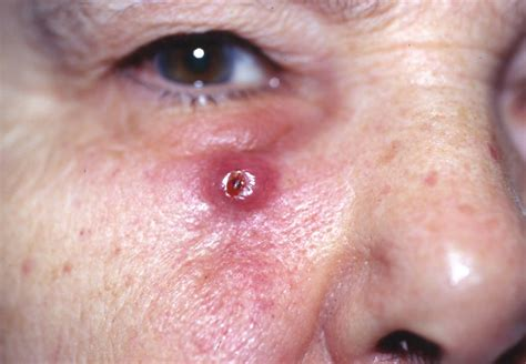 Squamous Cell Carcinoma   Pictures, Symptoms, Causes ...