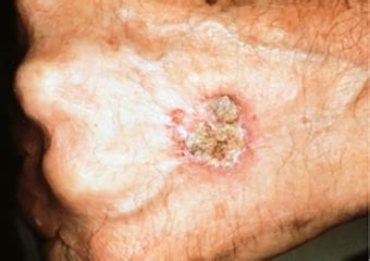 Squamous Cell Carcinoma Warning Signs and Images   The ...