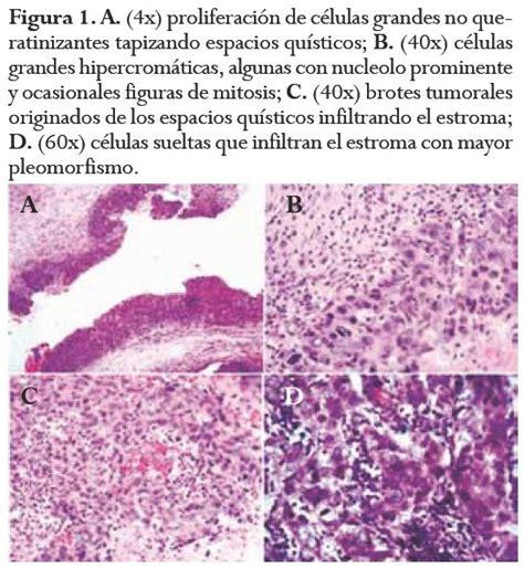 Squamous cell type metaplastic breast carcinoma: case ...