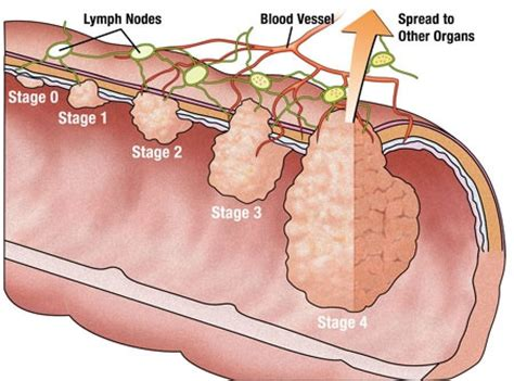 Stage 0 Colon Cancer Treatment   Cancer News Update