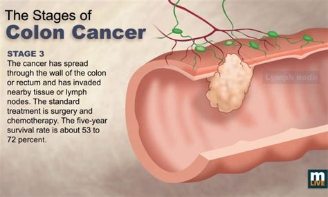 Stage 4 Colon Cancer  What You Need to Know   Tech News Era