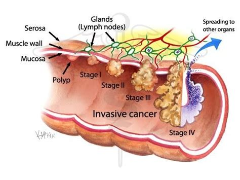 Stage 5 Colon Cancer   Cancer News Update