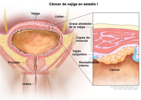 stage I bladder cancer  Patient    Siteman Cancer Center