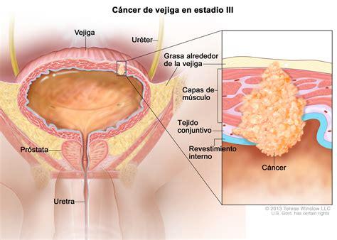 stage III bladder cancer  Patient    Siteman Cancer Center
