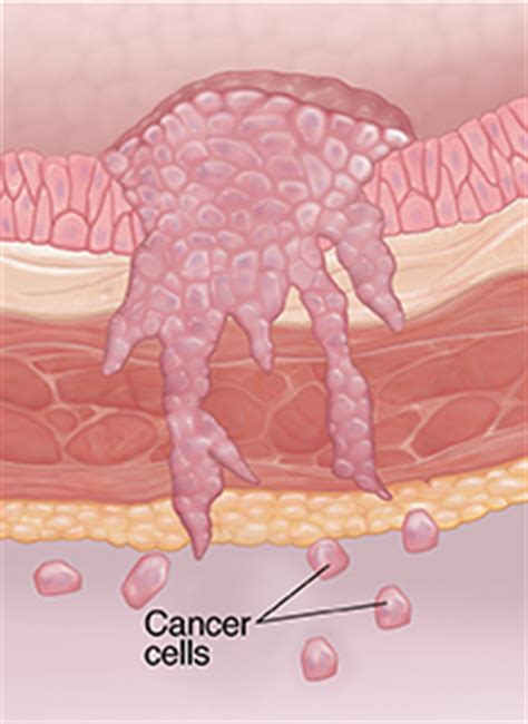 Staging of Bladder Cancer