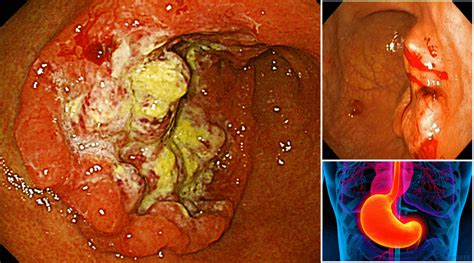 Stomach Cancer Causes Symptoms and Prevention ...