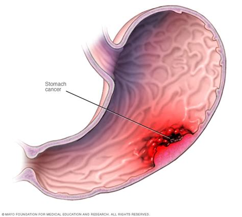 Stomach cancer   Symptoms and causes   Mayo Clinic