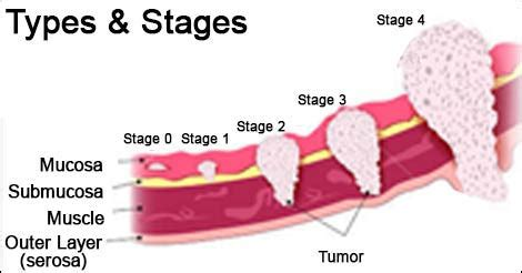 Stomach Cancer Types | Stages of Stomach Cancer