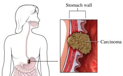 Stomach Cancer   UVA Health