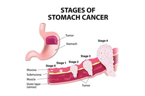 Stomach Cancers   Gastrointestinal Conditions   The GI Unit