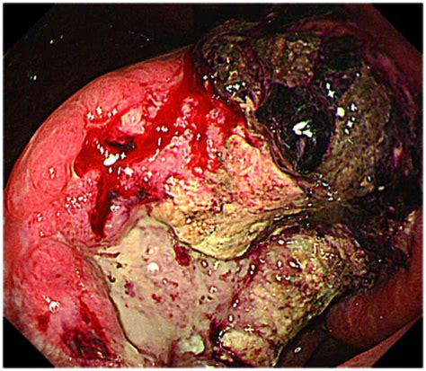 Subcutaneous metastasis arising from gastric cancer: A ...