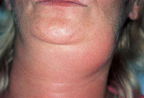 Submandibular lymphadenitis: symptoms and treatment