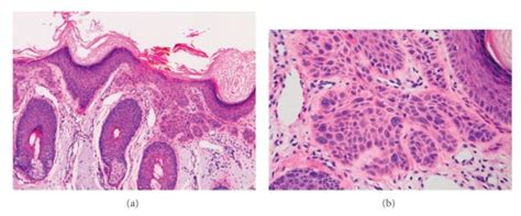 Superficially invasive squamous cell carcinoma  SCCSI .  a ...