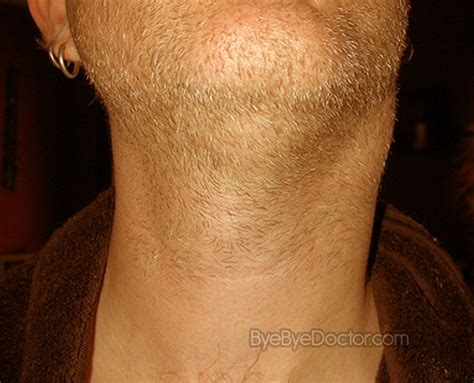 Swollen Glands in Neck   Causes, Treatment, Pictures