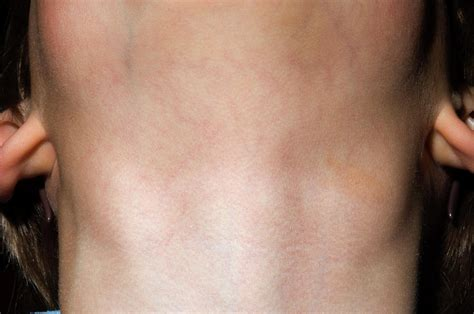 Swollen Lymph Glands In Neck Photograph by Dr P. Marazzi ...