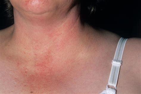 Swollen Lymph Node Photograph by Dr P. Marazzi/science ...