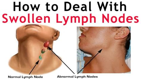 Swollen Lymph Nodes In Neck One Side   Children Or Adults