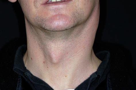 Swollen Lymph Nodes In Tonsillitis Photograph by Dr P ...