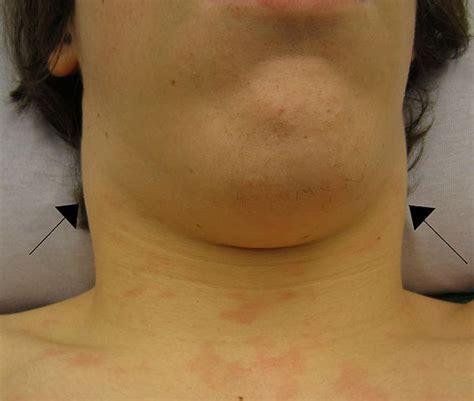 Swollen Lymph Nodes Near Ear, Under Jaw/Chin, in Neck ...